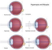 Hypermetrópia - Távollátás, Járóbeteg hyperopia kezelés